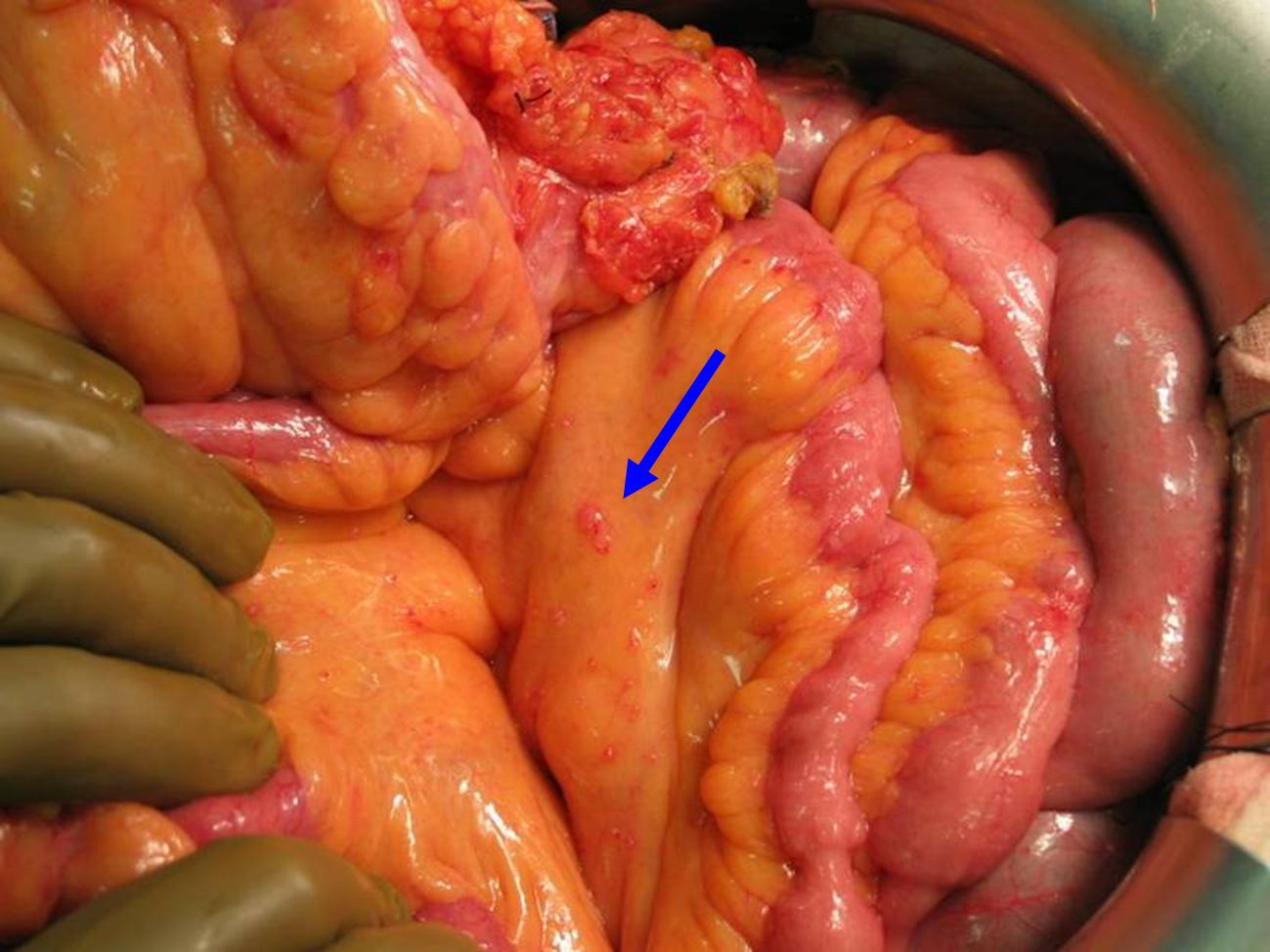 Hipec Ovhipec Pmp Peritoneal Cancer Peritoneum Seeding Seedings Metastases Hyperthermic Intraperitoneal Chemotherapy Debulking Colon Colorectal Ovarian Ovary Mesothelioma Pseudomyxoma Appendix